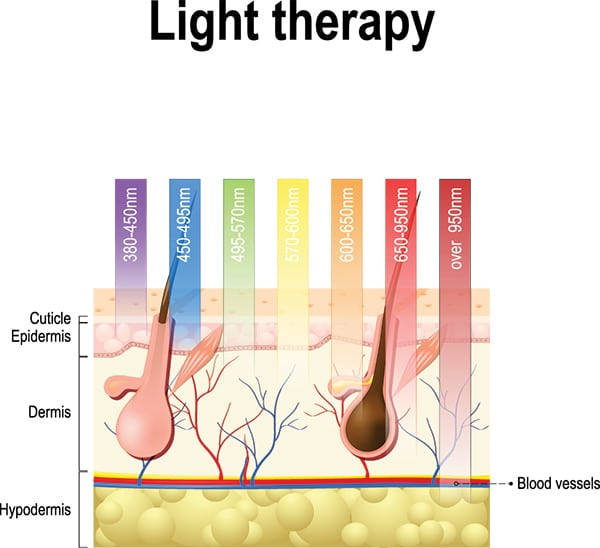 how light therapy works